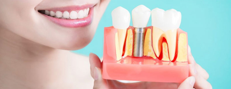 5 Reasons You Need a Dental Implant After a Tooth Loss, Dental Implant in Dubai