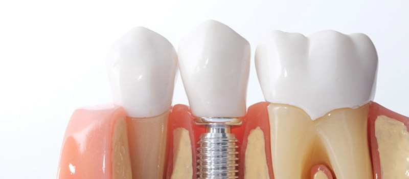 What-are-the-Benefits-of-Dental-Implants
