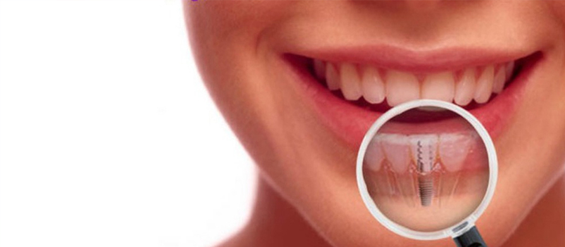 What will happen if you do not get dental implants after losing a tooth?