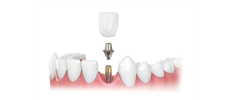 Factors That Affect The Cost Of Dental Implants