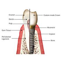 dental implant clinic dubai S8