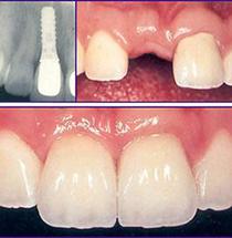 dental implant clinic in dubai S7