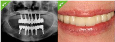 dental implant cost in dubai