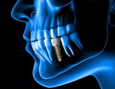 dental implant clinic S1