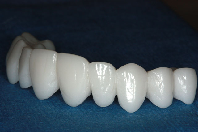 dental implant in uae