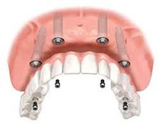 full mouth dental implant in dubai