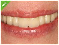 high quality dental implant in dubai